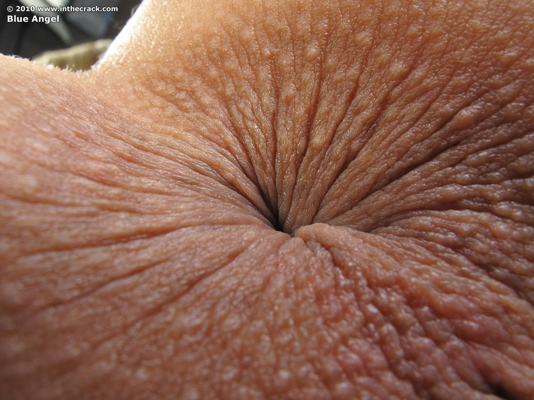 крупнымпланом анус