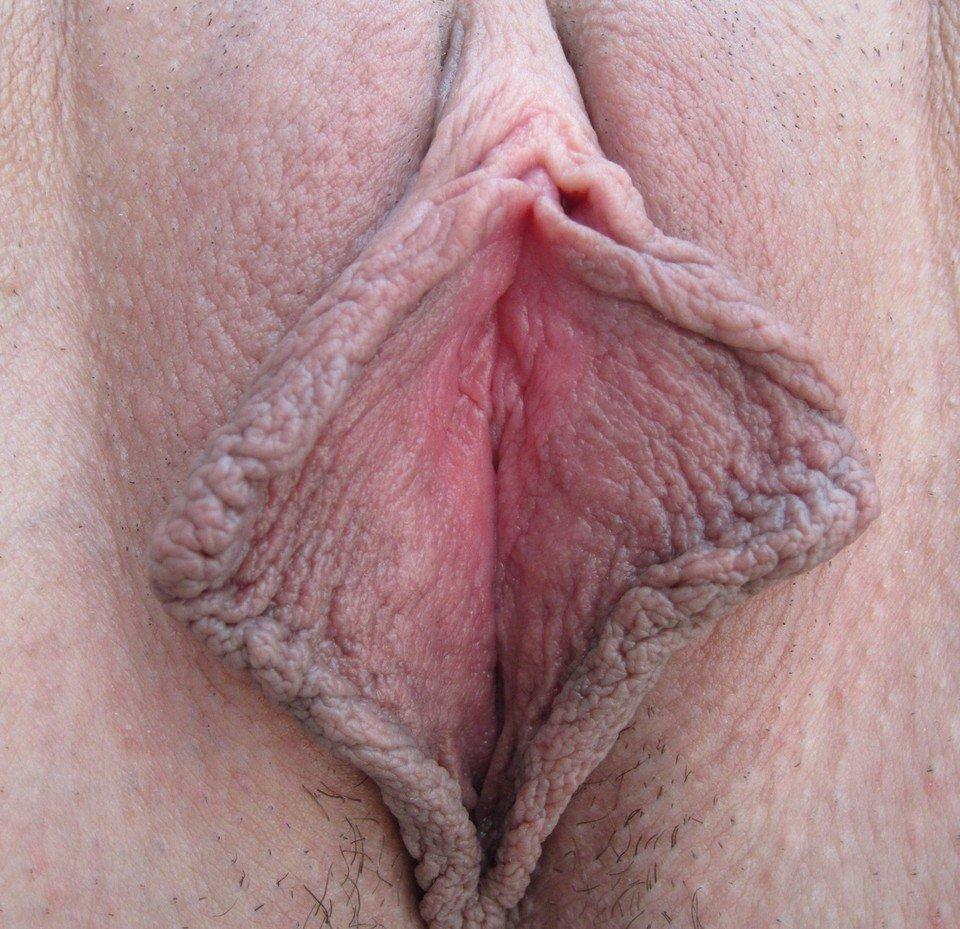Мясистые половые губки пышки